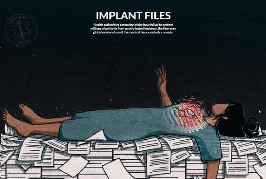 ICFJ objavila istraživanje o opasnosti medicinskih implantata